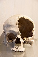 Damaged human skull.