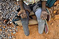 Leper begging ( Chhattisgarh state, India).