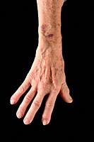 detail of the hand and arm of an elderly woman with a bruise.