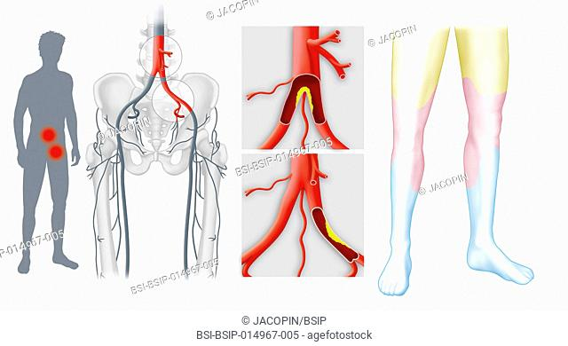 Several illustrations showing stenosis and occlusion of the lower limb arterial axes. From left to right : -a human outline showing the location of stenosis...