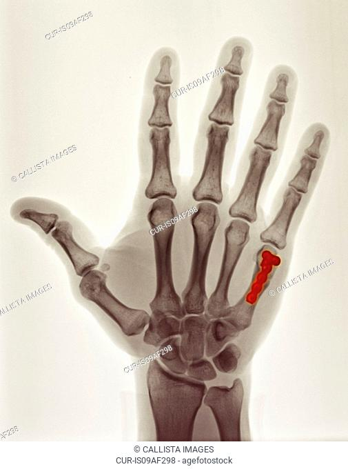 colorized x-ray showing repair of boxer's fracture