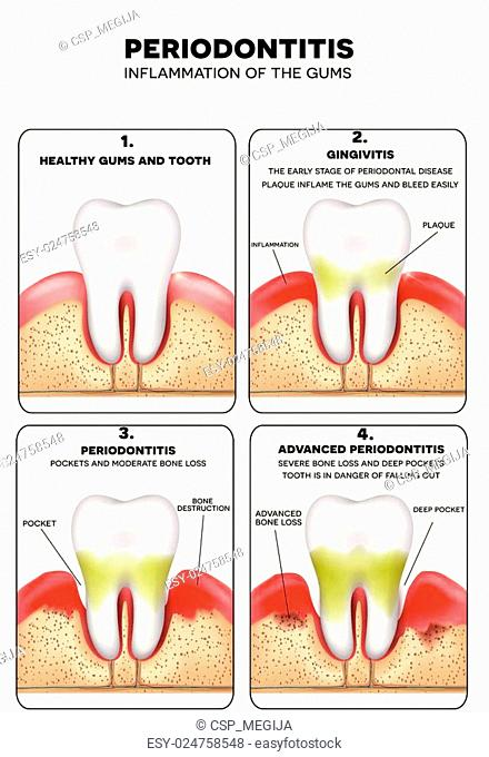 Anatomy tooth periodontium Stock Photos and Images | age fotostock