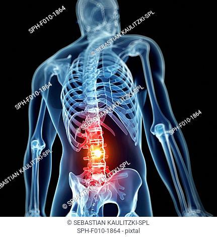 Human back pain, computer artwork
