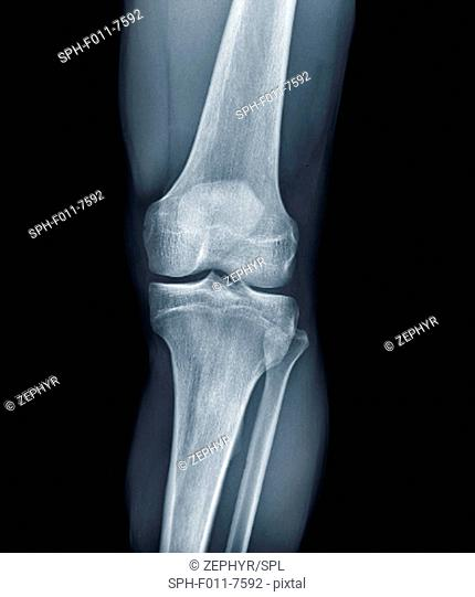 Normal knee. Frontal X-ray of the healthy left knee of a 28 year old