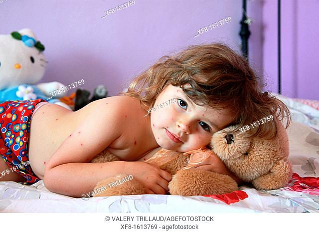 3 year old girl with chickenpox