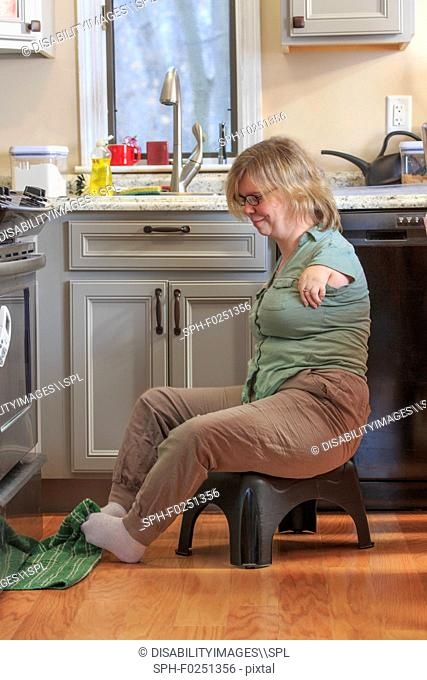 Woman with TAR Syndrome in kitchen