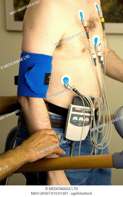 A man undergoing an Exercise Stress Test walking on a treadmill while hooked up to equipment that monitors his heart rate, breathing, blood pressure
