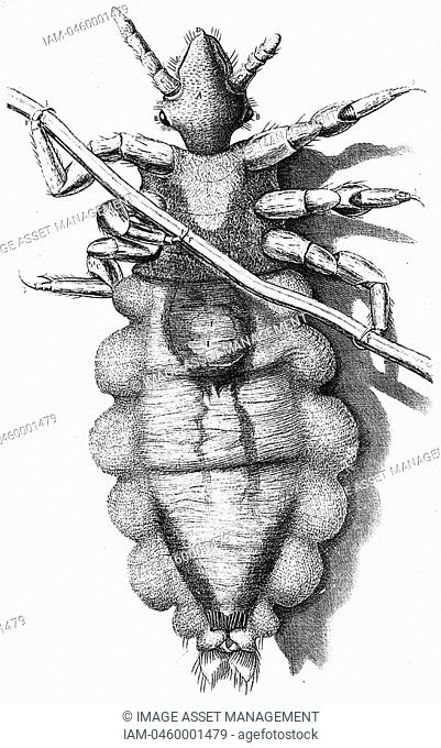 Human Louse, a wingless parasitic insect  Engraving from Robert Hooke 'Micrographia' London 1665  Now known to be vector for Epidemic typhus