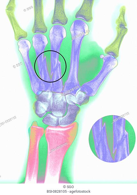 FRACTURED HAND, X-RAY<BR>Colorized x-ray of a fracture of the 3rd and 4th metacarpal bones of the left hand of a 24-year-old patient
