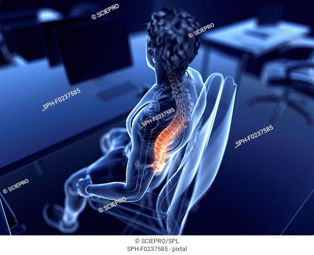 Illustration of an office worker with a painful back