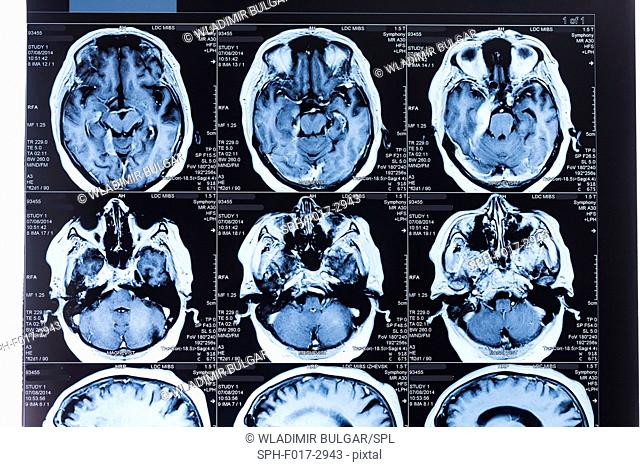 Magnetic resonance imaging (MRI) scans of the human brain