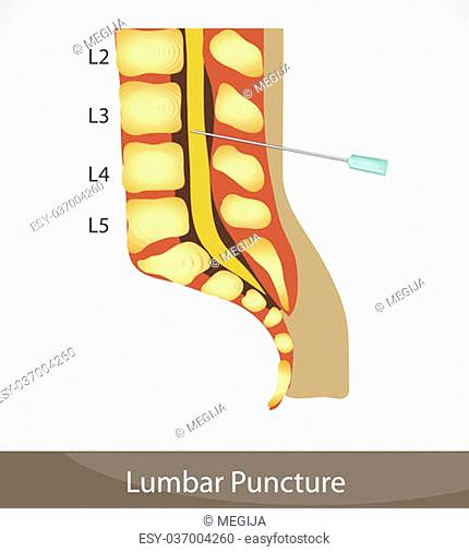 Puncture Spinal Tap Stock Photos And Images Age Fotostock