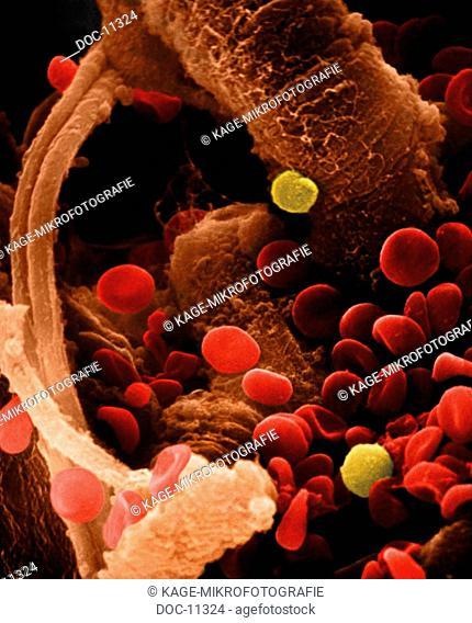 Coronary vessel vein with blood 1800 x scanning electron microscope Photo-Technical Short Cuts: LUMEN = optical microscope