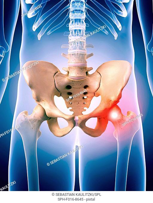 Human hip pain, illustration