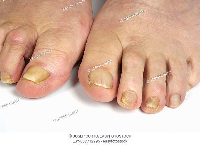 senior woman foot