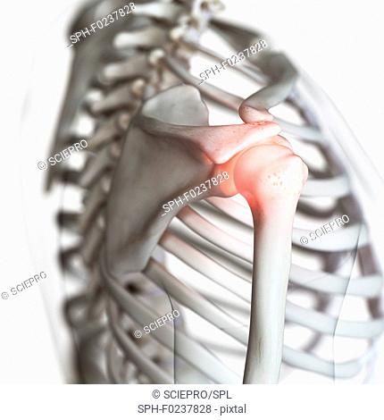 Illustration of a painful shoulder joint