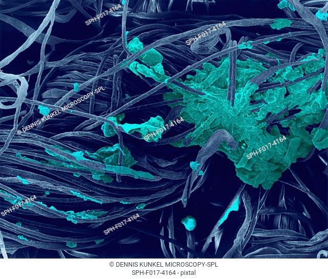 Coloured scanning electron micrograph (SEM) of Cotton t-shirt collar with dirt, dead skin, etc. embedded in fibres. A T-shirt is a style of fabric shirt
