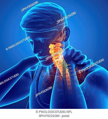 Man with neck pain, illustration
