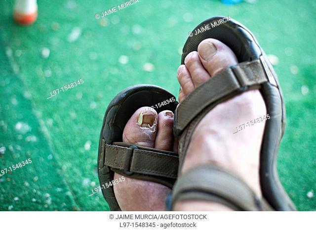 Sore feet with toe nail missing along the Camino de Santiago