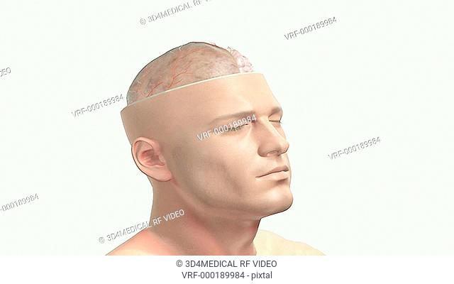 An animation of the brain and its position relative to the skull. A portion of the skull and the brain have been removed