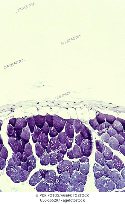 Skeletal muscle, striated muscle, cross section, colagen, locomotion, 200 X  optical microscope, photomicrography , histology