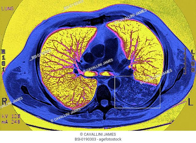 PNEUMOCOCCAL PNEUMONIA, SCAN<BR>CAT scan, axial cut-away view of left inferior lung lobe. Pneumococcal pneumonia