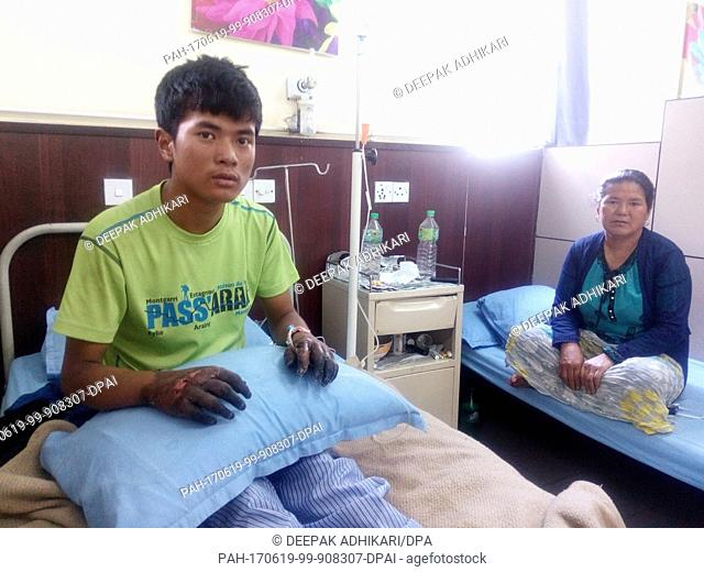 20-year-old Nepalese sherpa Dawa Sange shows the grave frostbites he received on Mount Everest at a hospital in Kathmandu, Nepal, 31 May 2017
