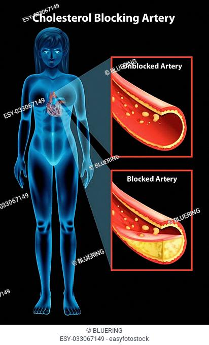 Showing the process of ateriosclerosis