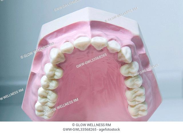 Close-up of a set of dentures
