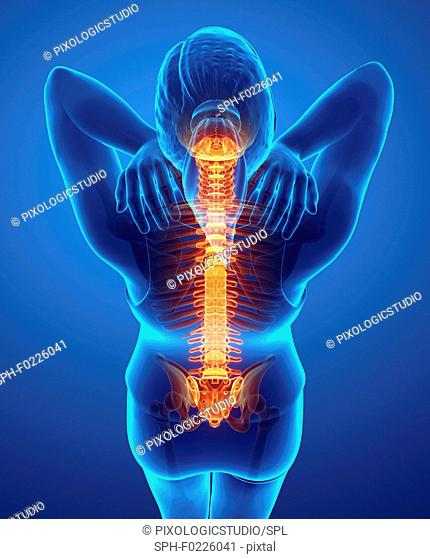 Woman with back pain, illustration