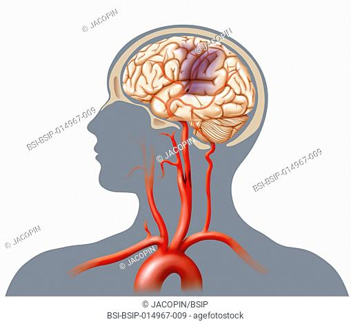 Illustration of a cerebrovascular accident (CVA) caused by an occlusion (atheromatous plaque which diminishes or obstructs the arterial lumen) in the carotid