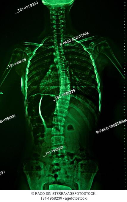 Scoliosis, spine radiograph