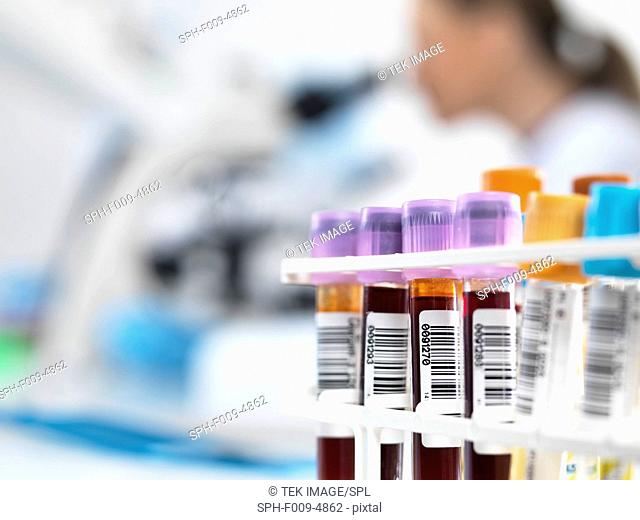 Blood samples in test tube rack with bar codes