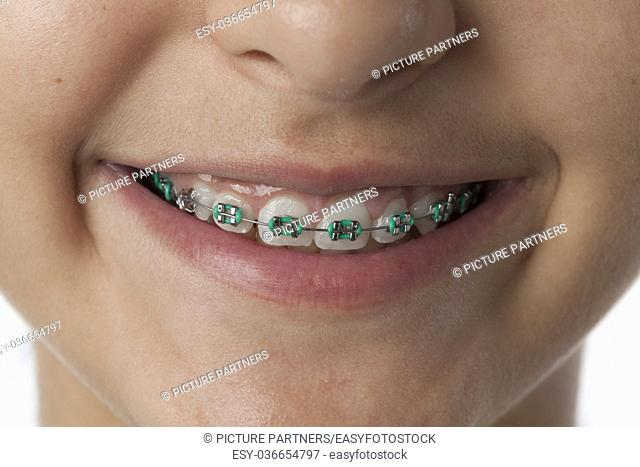 Close up of dental braces in the mouth and on the teeth of a teenage girl