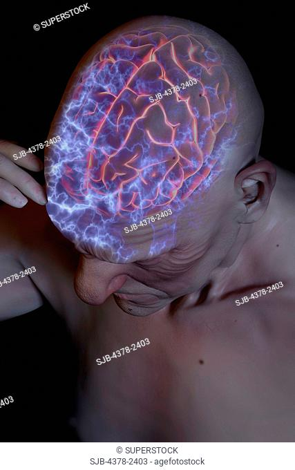 Anatomical model with an illuminated brain showing the activity of nerve cells which causes head pain