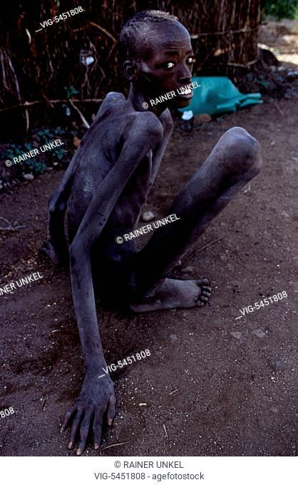 SDN , SUDAN : A starving young man in Lafon ( South Sudan ) , August 1994 - Lafon, Sudan, 20/08/1994