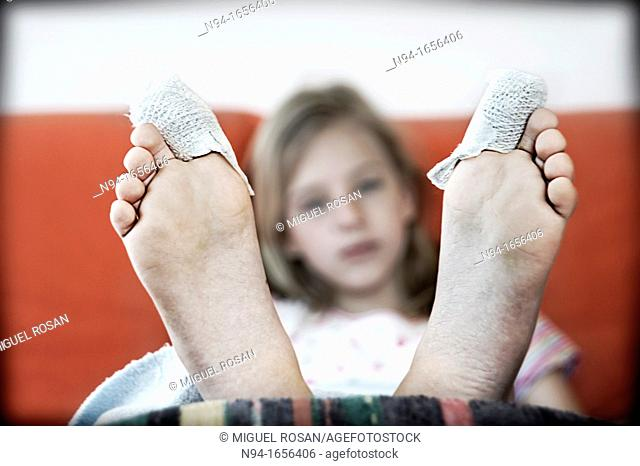 Teen girl in rehabilitation after an operation on the toes