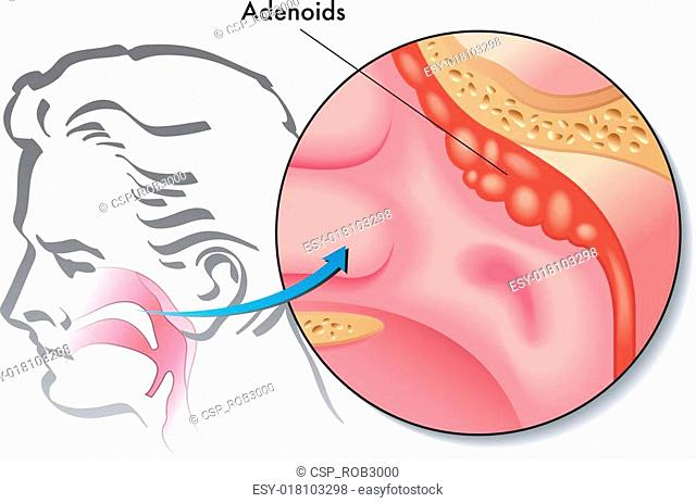 Pharyngeal tonsil Stock Photos and Images | age fotostock
