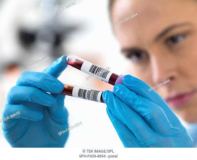 Female scientist holding blood samples in test tubes