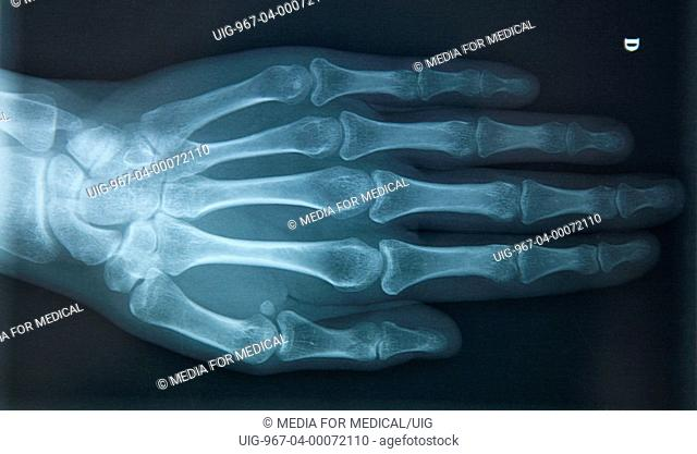 X-ray of the right hand, viewed from above, of a 29-year-old woman