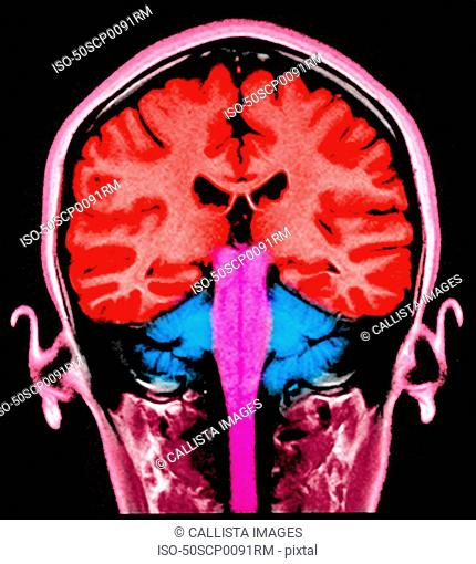 MRI brain sagital section normal