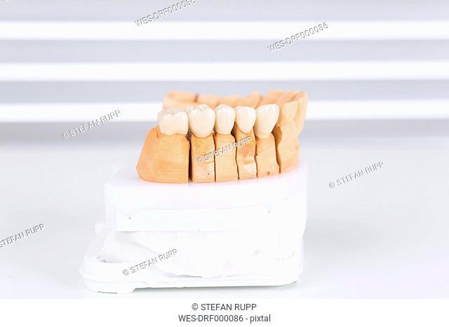 Germany, Freiburg, Finished model of dental bridge, close up