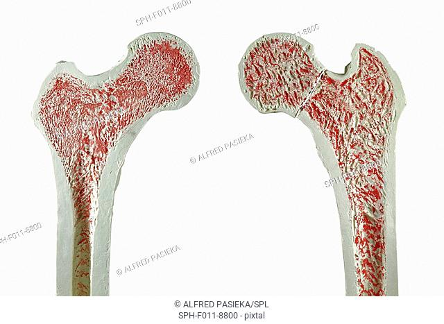 Cross sections through models of a normal (left) and and fractured femur (right) thigh bone