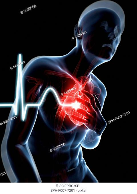 Heart attack, computer artwork