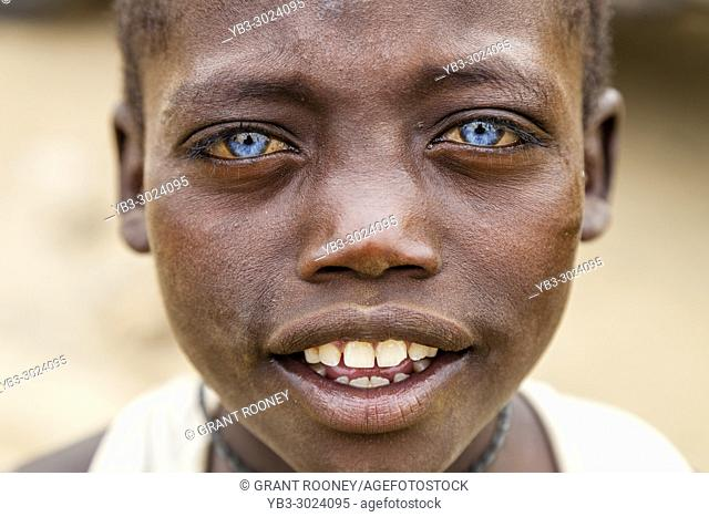 A Young African Boy With Blue Eyes, Jinka, Omo Valley, Ethiopia