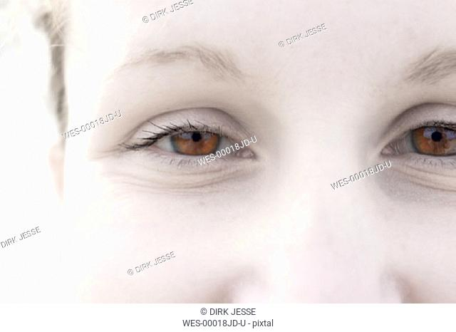 eyes of a smiling albino woman