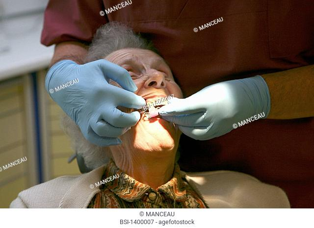DENTAL CARE FOR ELDERLY PERSON Photo essay from dental office. Care, trial and placement of dental prostheses