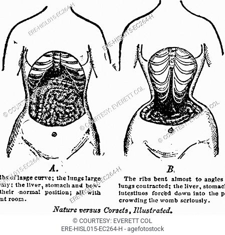 'Nature Versus Corsets.' At left is the natural arrangement of a woman's internal anatomy, contrasted with the corset's effects on the internal organs and bones