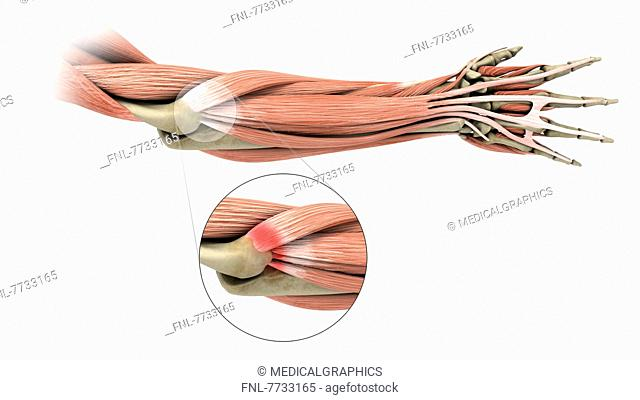 Illustration of a tennis elbow (lateral epicondylitis)