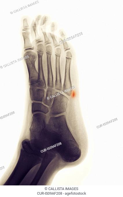 X-ray of foot showing avulsion fracture